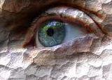 Understanding Dry Eye