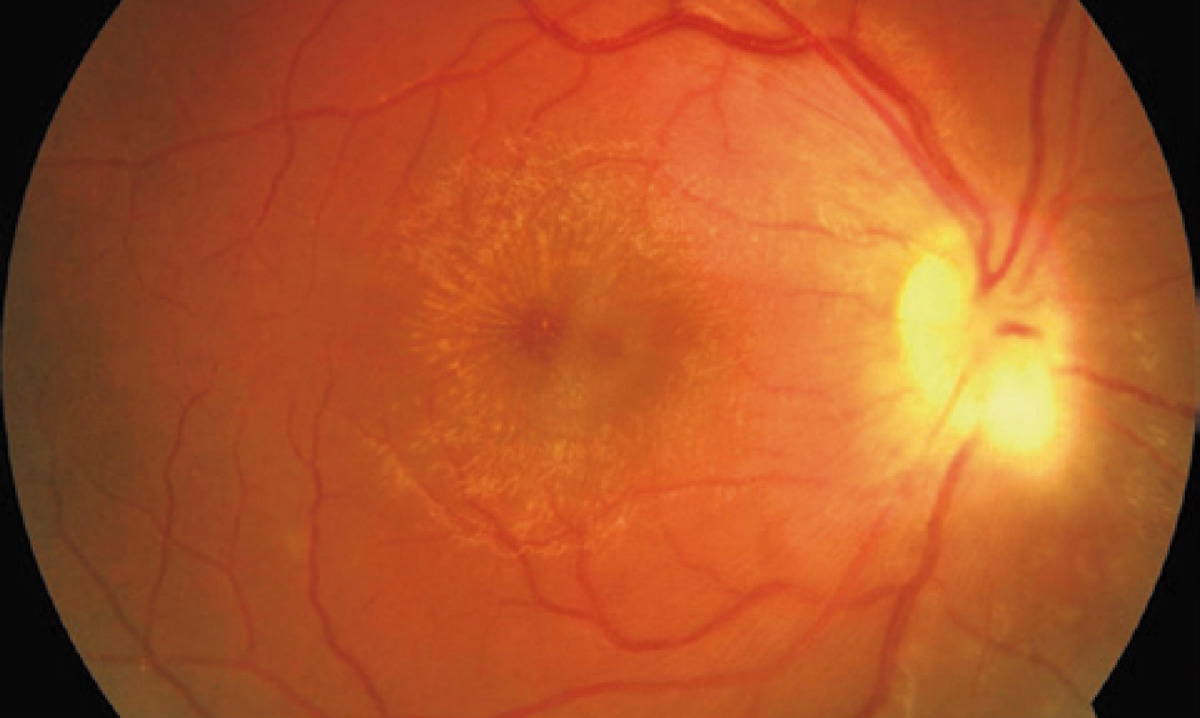 Blindness Relieved by a New Method of Treatment